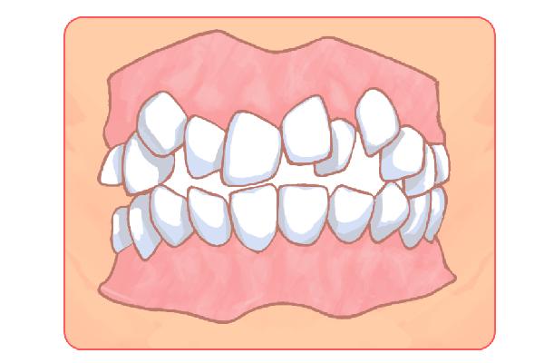 小児矯正歯科にも対応しています